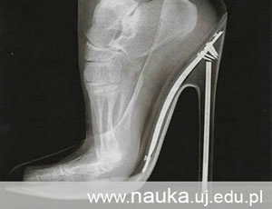 1Question: What happens to our feet when we wear high heels?