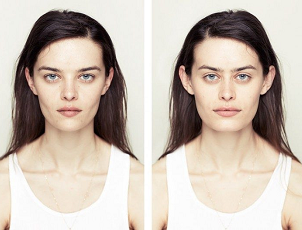 Is facial symmetry a sign of good health?